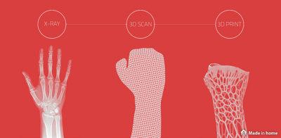 3D Printed Prosthetics – future of medicine